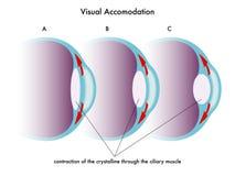 Visuele aanpassing royalty-vrije illustratie