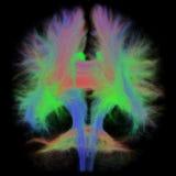 Vit fråga Tractography av den mänskliga hjärnan i Coronalsikt royaltyfria bilder