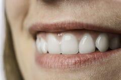 Vita tänder för Closeup av den unga kvinnan Royaltyfria Bilder