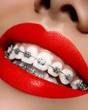 Vita tänder med hänglsen Tandvårdfoto Kvinnaleende med ortodontic tillbehör, ljusa kanter Ortodontibehandling Royaltyfri Bild