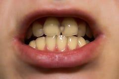 Vita tänder med karies arkivfoton