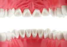 Vita tänder, sikt från munnen som isoleras med banan Royaltyfria Foton