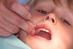 vita tänder Arkivfoto