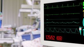 Vital Sign Monitor in Intensive Care Unit. With Nurse on Background stock video