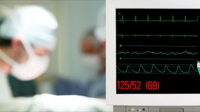 Vital Sign Monitoring in Operation Room. With Surgeons on Background stock video footage