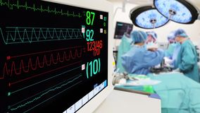 Vital Sign Monitoring in Operation Room stock video footage