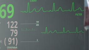 Vital signs monitor displaying hear rate, blood transfusion, stable condition. Stock footage stock footage