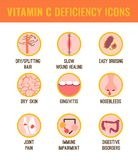 Vitamin C deficiency. Signs and symptoms of Vitamin C deficiency. Icons set. Isolated vector illustration on a white background in a flat style. Beauty, health royalty free illustration