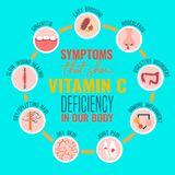 Vitamin C deficiency. Signs and symptoms of Vitamin C deficiency. Icons set. Isolated vector illustration on a bright blue background in a flat style. Beauty royalty free illustration