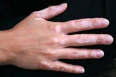 vitiligo кожи руки условия Стоковая Фотография