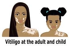 Vitiligo на взрослом и ребенке Стоковое Фото