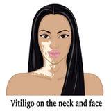 Vitiligo на шеи и стороне Стоковое Изображение