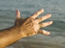 vitiligo Стоковые Фотографии RF