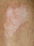 Vitiligo Fotos de archivo libres de regalías
