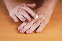 Vitiligo Royalty Free Stock Images