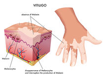 Vitiligo. Medical Illustration of the effects of vitiligo Stock Photos