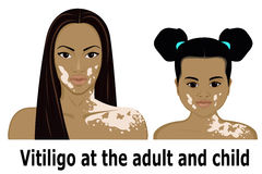 Vitiligo przy dzieckiem i dorosłym Zdjęcie Stock