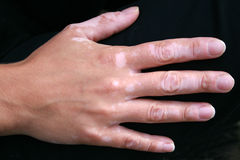 Vitiligo skin condition on hand. A woman's hand with spread out fingers showing a vitiligo skin condition Stock Photography