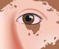Vitiligo on skin layer anatomy. / eye Stock Image