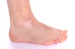 Vitiligo Spot. Pigment loss on the foot caused by vitiligo Royalty Free Stock Photo