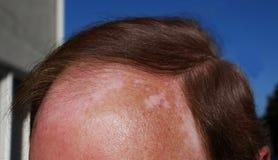 Vitiligo and sunburn stock photography