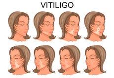 Vitiligobehandeling Before and after vector illustratie