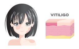 Vitiligofrauen Gesicht und Hautschichtanatomie lizenzfreie abbildung