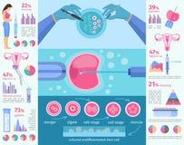 In vitro plan Infographic för befruktning mall royaltyfri illustrationer