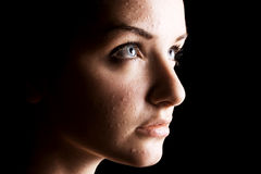 Vittima femminile dell'acne fotografia stock