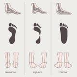Vlakke voet, hoge boog stock illustratie
