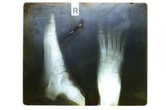Voet op x-ray film Stock Afbeelding