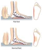 voeten stock illustratie