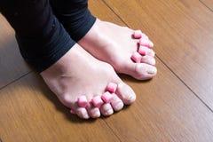 voeten met verslechterde spijkers stock foto