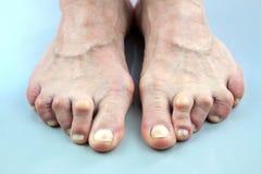 Voeten van Vrouw van Reumatoïde Artritis worden misvormd die Royalty-vrije Stock Fotografie