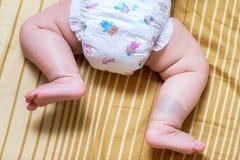 Voglia sulle gambe asiatiche della neonata Immagini Stock Libere da Diritti