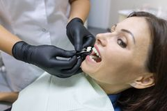 Volwassen vrouwelijke tandarts die tandimplant kiezen Geneeskunde, Tandheelkunde en Gezondheidszorgconcept stock foto