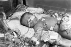 Voorbarige Baby stock foto