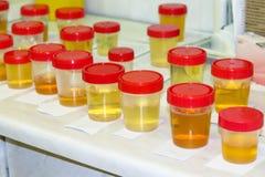 Voorbereiding van urinesteekproeven in het laboratorium in het ziekenhuis voor de studie Speciale teststroken voor urineonderzoek stock afbeelding