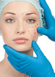 Vor Schönheitsoperationoperation Stockbilder