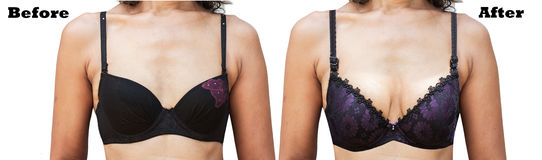Vor und nach die Brust-Chirurgie der Frauen Lizenzfreies Stockbild