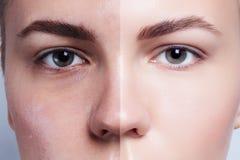 Vor und nach kosmetischer Operation Junges hübsches Frauenportrait Stockbild