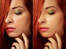 Vor und nach kosmetischer Operation Junges hübsches Frauenportrait Lizenzfreie Stockbilder