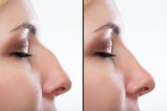 Vor und nach plastischer Chirurgie der Nase stockfotos