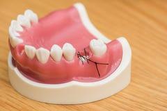 Vorbildliche medizinische Implantate, welche die Ausrüstung prüfen Stockbilder