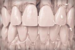 Vorbildliche Zähne in den Plastikgummis Stockfoto