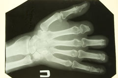 Vordere Abbildung des Röntgenstrahls der Palmen Stockfoto
