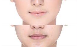 Vorher nach, unter Verwendung des Lippenstifts auf moutth Lippe durch Glanz und schärfen Sie lizenzfreie stockfotos