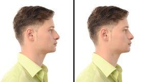 Vorher-Nachher-Foto eines jungen Mannes mit Nasenoperationsplastischer chirurgie. Lizenzfreie Stockfotos