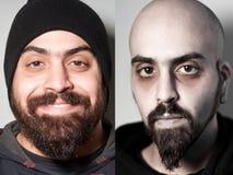Vorher und nachher vom kranken Mann Droge beigemischt worden lizenzfreies stockfoto