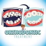 Vorher und nachher von der Orthodontistbehandlung kommen Sie mit typografischem Entwurf - Vektorillustration vektor abbildung